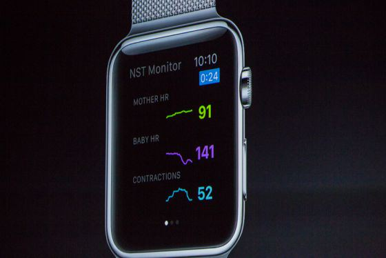 sense4Baby apple watch